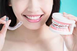 歯並びの矯正、必要な費用や治療法の種類は?