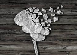 「治療可能な認知症」と称される脳の病気を医師が解説