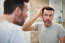 飲み薬で、本当に男性型脱毛は止まるのか?