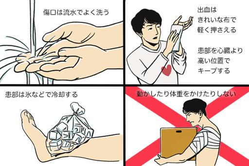 怪我の応急処置はP(保護)・R(安静)・I(冷却)・C(圧迫)・E(挙上)と覚えておこう