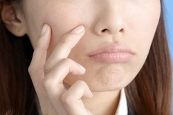 ニキビや乾燥…マスクの肌トラブルでお悩みの人に!肌荒れ対策を美容ライターが解説!