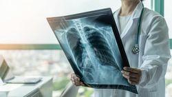 がんを疑うべき人が抱える「9つの症状」と治療法|兎にも角にも大事なのは「早期発見・早期治療」
